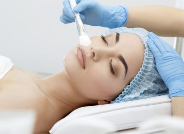 Signature Chemical Peel